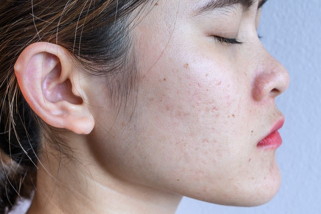 How To Treat Fungal Acne On Your Face When Nothing Else Works