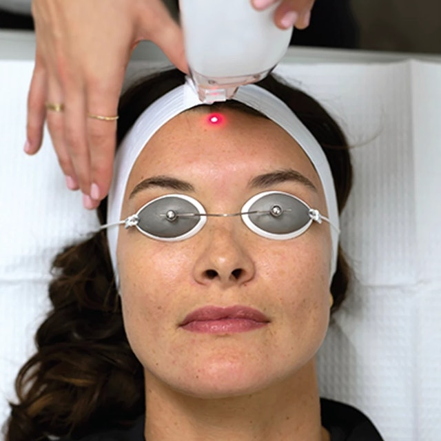 The best facials to get in winter include laser treatments
