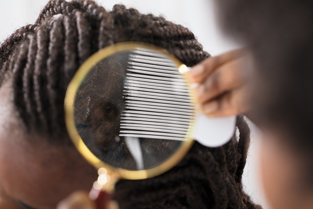 Close-up Of Dermatologist Looking At Patient's Hair Through Magnifying Glass