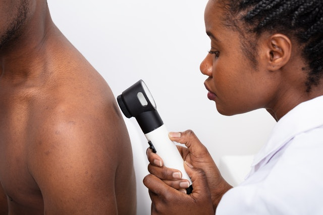 Close-up Of A Female Doctor Checking Pigment Skin On Man's Back With Dermatoscope